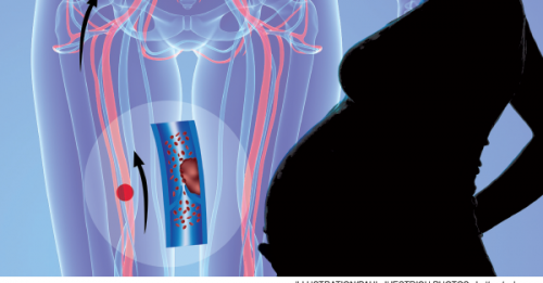 Lack of Data for Evaluating Venothromboembolic Disease In Pregnant Patients Leaves Physicians Looking for Best Approach