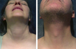Female versus male external anatomy: The thyroid prominence is evident in the male, whereas the thyroid and cricoid have equal prominence in a female.