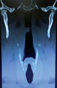 Figure 3. CT imaging of the larynx in a coronal projection showing the epiglottis; the piriform recesses lateral to the epiglottis; the hyoid (bright dots); thyroid lamina; and, lowest and most medial, the cricoid. The vocal cords are at the inferior aspect of the thyroid cartilage. Note the rhomboid shape from the hyoid to the thyroid and cricoid and that the lower thyroid encircles the cricoid.