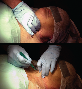 Figure 5. The laryngeal handshake, starting on right side with dominant hand (top), then switching to the nondominant hand on larynx, with the dominant hand getting ready to make the incision (bottom).