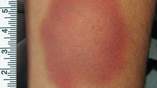 Can You, With Forensic Certainty, Determine the Age of This Bruise Based on its Color?