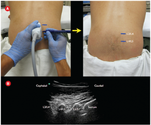Figure 3A: Using a marker, the interspaces are labeled lateral to the probe. 3B: Ultrasound image with labeled articular processes.