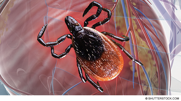 Risk of Sudden Cardiac Arrest from Lyme Carditis Underscores Need for Timely Diagnosis, Treatment