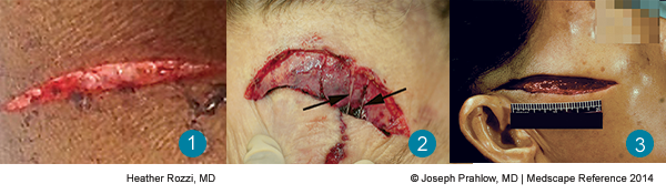 Laceration or Incised Wound: Know the Difference
