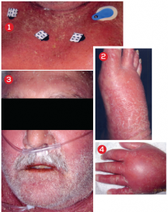Diagnosis, Treatment for Patient with Psoriasis, Fever, Bloating, and Rash