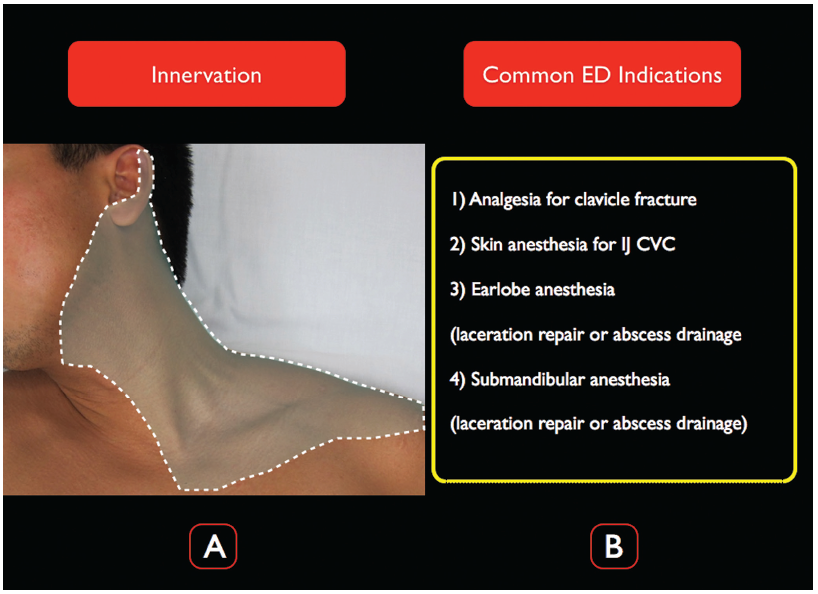 Pain Control Using Ultrasound-Guided Superficial Cervical Plexus Block