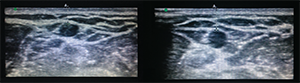 Figure 10. If catheter placement was successful, you will see turbulence inside of the vein when flushing with saline.