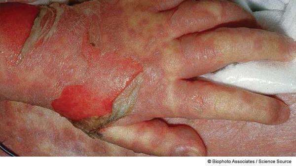Recognize Pediatric Toxic Epidermal Necrolysis Symptoms, Manage Disease