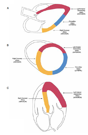 Anatomical description of coronary perfusion in the A) PLAX, B) PSAX, and C) A4C.