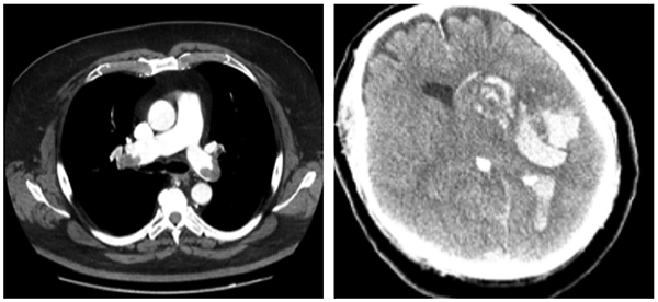 Figure 1. (Left): Bilateral submassive pulmonary emboli in our patient on exogenous testosterone. Figure 2. Repeat head CT five hours after tPA administration for treatment of pulmonary emboli and ischemic stroke.