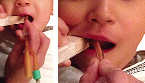 Figure 3. Insertion of the apparatus into the oropharynx.