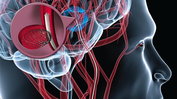 Endovascular Intervention for Stroke May Become Alternative to tPA