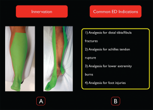 Figure 1. Distal sciatic nerve innervation and common ED indications for the block.