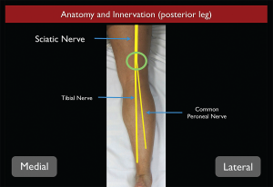 Figure 2. Sciatic nerve anatomy from the posterior aspect as it travels down the thigh into the leg.