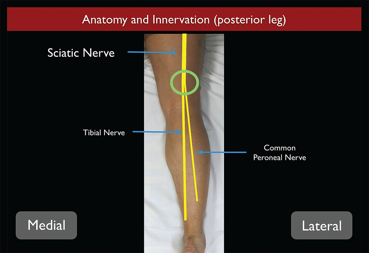 How to Perform Ultrasound-Guided Distal Sciatic Nerve Block in the ...
