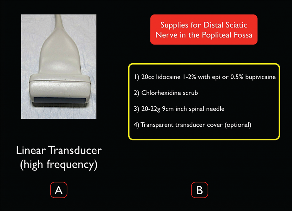 Figure 3. Transducer and supplies needed for ultrasound-guided distal sciatic nerve block in the popliteal fossa.