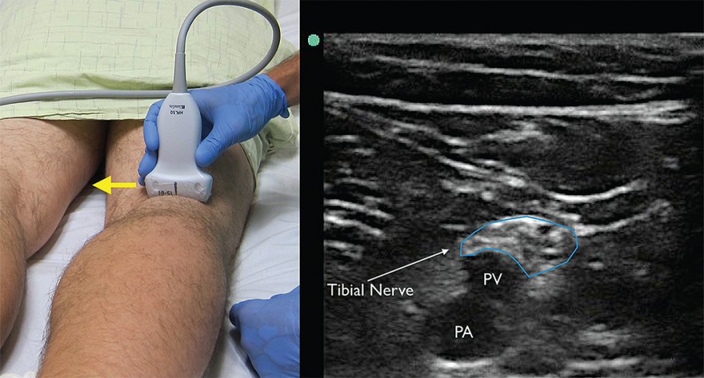 Figure 4. The tibial nerve sits just above the popliteal artery (PA) and popliteal vein (PV). Identification of this nerve is the first step in identifying the larger and more proximal distal sciatic nerve. Yellow arrow indicates direction of probe marker.