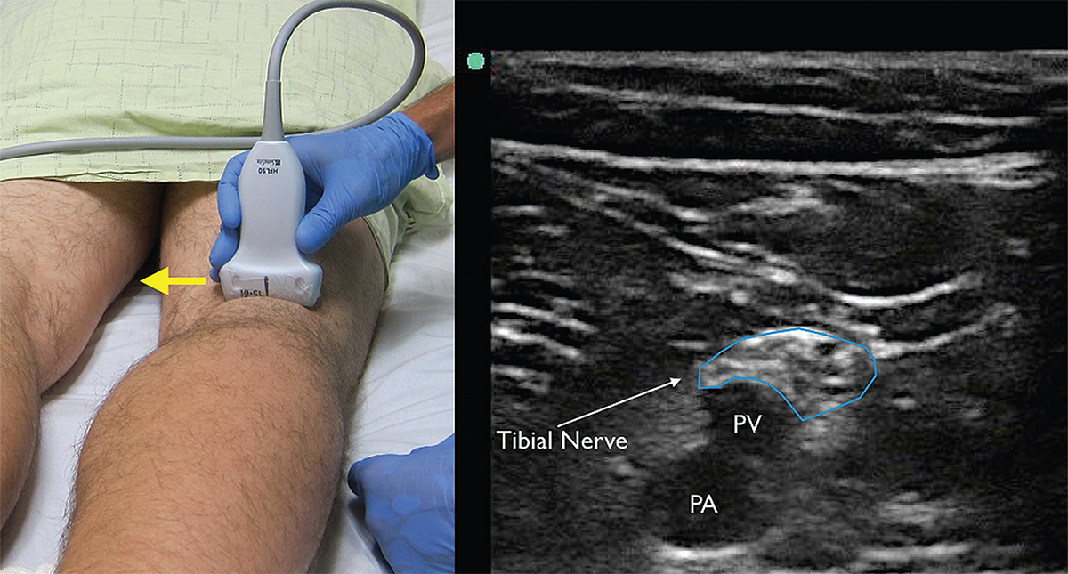How To Perform Ultrasound Guided Distal Sciatic Nerve Block In The