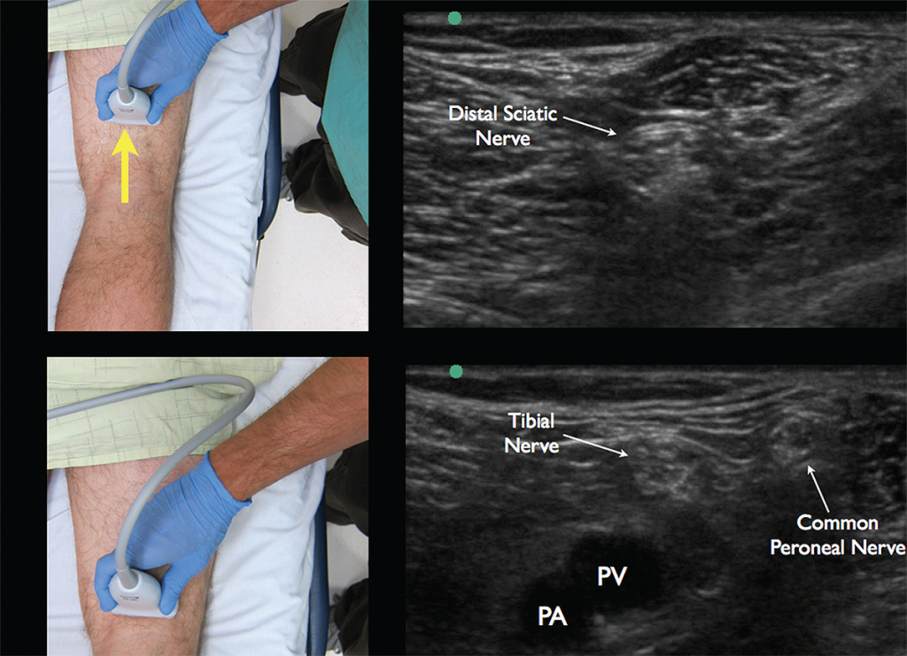 Figure 5. Appropriate movement of the ultrasound probe cephalad to visualize the joining of the tibial nerve with the common peroneal nerve forming the distal sciatic nerve. Note the common peroneal nerve approaching from the lateral aspect.
