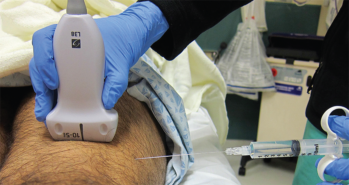 How to Perform Ultrasound-Guided Distal Sciatic Nerve Block in the