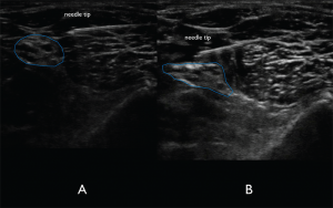 Figure 7A. In-plane lateral to medial approach of the needle. The needle tip is visualized clearly to ensure lack of nerve and vasculature puncture. Figure 7B. Spread of anechoic local anesthetic surrounding the distal sciatic nerve indicating a successful nerve block.