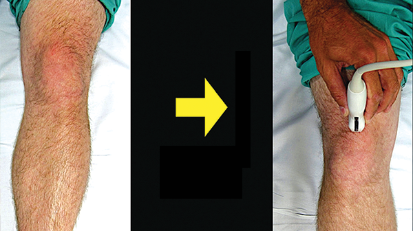 How to Perform Ultrasound-Guided Knee Arthrocentesis