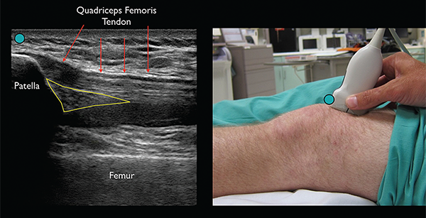 Figure 2. Identify the patella and then slide the transducer cephalad until the approach ultrasound landmarks, including the patella, femur, quadriceps femoris tendon, and fat pad, are appreciated. The effusion will appear as an anechoic (black) space underneath the fat pad. (Green circle indicates ultrasound transducer directional marker.)