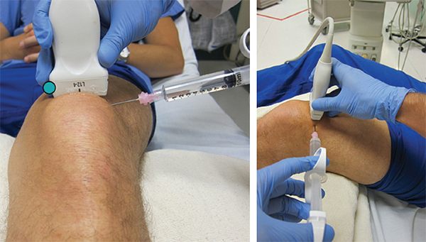 Figure 3. Rotate the probe marker to the patient's right in order to visualize a transverse view of the prepatellar space with the effusion.