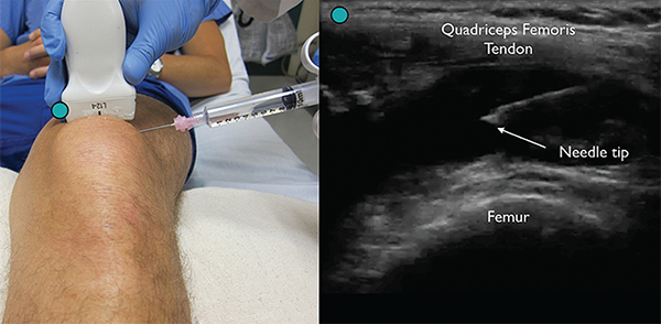 Figure 4. Enter the skin lateral to the probe using an 18g needle attached to a syringe for an in-plane arthrocentesis while visualizing the needle tip.