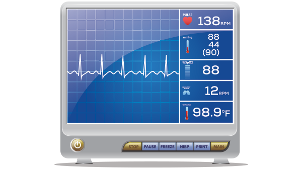 Timing Resuscitation Sequence Intubation for Critically Ill Patients