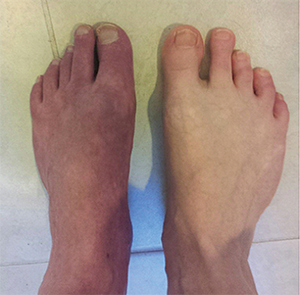 Feet of a patient with more advanced CRPS, which show clear skin atrophic changes.