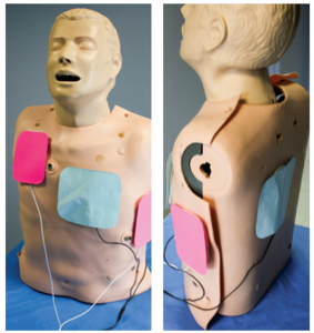 Figure 1. Orientation of defibrillation pads for double sequential external defibrillation: anterior-posterior (blue) and anterior-apex (pink).