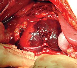 Renal fracture: intraoperative