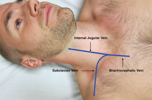 Figure 1. Surface anatomy of the right subclavian vein (SCV). Note the confluence of the SCV and internal jugular vein (IJV) to form the brachiocephalic vein.