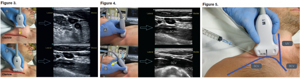 Figure 3. (A) In a transverse plane on the neck, locate the thyroid, IJV, and carotid artery (CA) deep to the sternocleidomastoid (SCM) muscle. (B) Slide the transducer down the IJV into the supraclavicular fossa until the subclavian artery (SCA) is noted. Figure 4. Angle the probe anteriorly (solid yellow arrow) to visualize the SCV as it joins the brachiocephalic vein (BCV). The external jugular vein (EJV) may be seen joining the SCV at this location. Figure 5. An in-plane technique will be used with the needle entering the skin just lateral to the ultrasound transducer. The operator should use the nondominant hand to stabilize the transducer on the patient's neck. SCV; IJV; BCV.