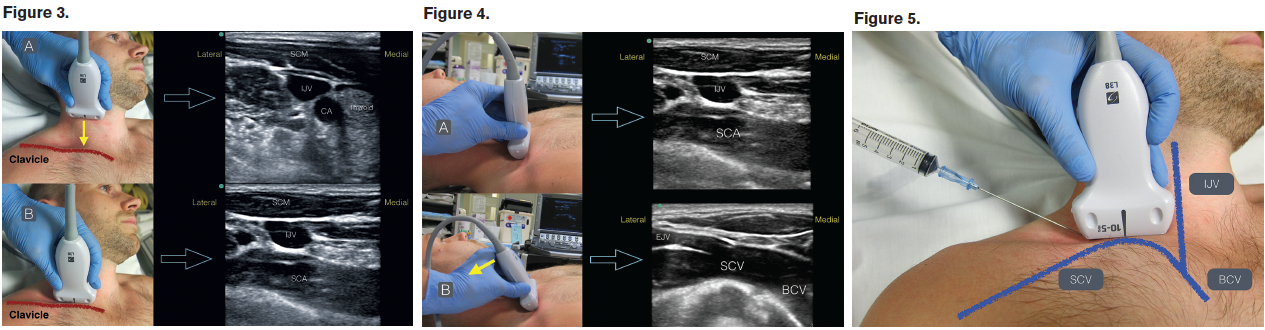 Using the Supraclavicular Approach to Ultrasound-Guided Subclavian ...