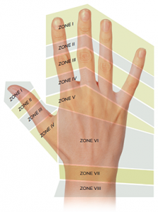 Figure 1. Extensor injury zones.3