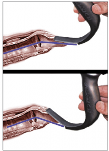 Figure 2 (Right). Schematic representation of the angle of approach. The top image shows ideal placement of a hyperangulated blade—in this case, a GlideScope Titanium blade—compared to overinsertion (bottom image). Note that the approach angle is more acute and that there is less room for tube delivery between the blade and the larynx.