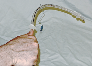 Figure 4. Right-turn overhand technique for hyperangulated stylet insertion into the trachea. By turning the stylet and tube 90 degrees, the tube angles downward, aligning with the inclination of the trachea. Note that the tube can be advanced in small increments off the stylet using the right hand only as long as an overhand grip is used at the top of the tube and stylet.