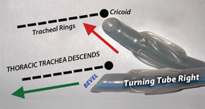 Figure 5. Turning the tube right improves interaction with trachea rings (corrugation and inclination) with a left-bevel tube. Whenever inserting trachea tubes with a left-bevel tube, if resistance is felt beneath the vocal cords, a gentle rightward turn will solve the problem in most instances.
