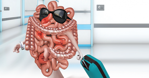 Antibiotics, Hospital Admission May Not Help Uncomplicated Diverticulitis