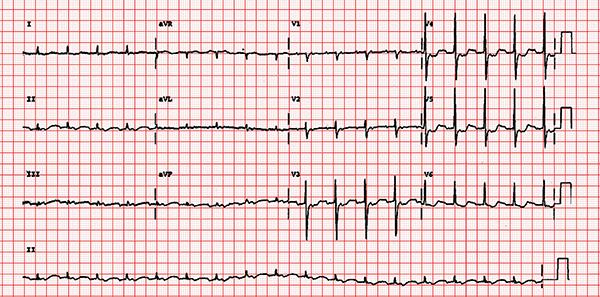 Modified Valsalva Maneuver Better Way to Manage Supraventricular Tachycardia