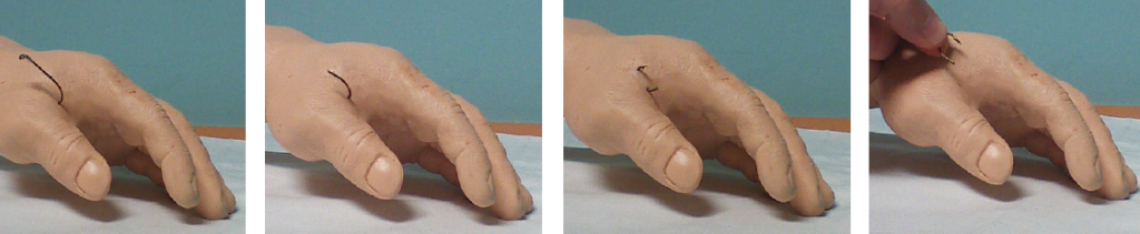 Figure 3 . Pull through technique for multi-barbed hooks.