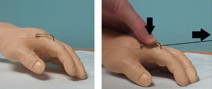 Figure 5. String yank technique.
