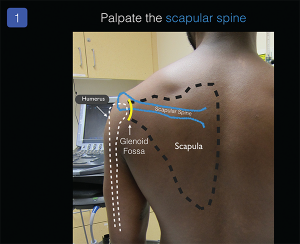 Figure 1. Place the ultrasound system in front of the patient and palpate the patient's scapular spine to identify basic surface anatomy.