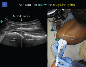 Figure 4. Use the M-mode marker to center the transducer over the space between the glenoid fossa and humeral head. With an 18–21 g, 3.5-inch spinal needle attached to a control syringe, advance the needle tip just parallel to the probe, just under the scapular spine.