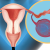 Research on Ovarian Size in Children Provides Guidance on Dealing with Torsion, Uncomplicated Cellulitis