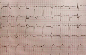 (click for larger image) Figure 1. ECG with a complete right coronary artery occlusion that was a STEMI equivalent with Sgarbossa criteria in a symptomatic patient. PHOTO: TRENT STEPHENSON, DO.