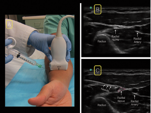 Figure 4. For the radial nerve block, starting at the wrist with the linear ultrasound probe in a transverse position over the radial artery (A), scan proximally until the nerve can be visualized separating from the radial artery (B). Locate the radial nerve between the brachioradialis and brachialis muscles. insert your needle from the radial (lateral) aspect of the probe (A&C).