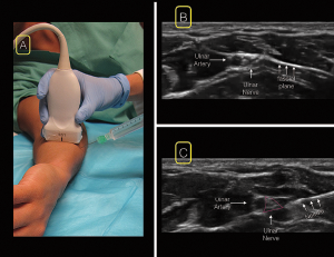 Figure 5. For the ulnar nerve block, position the linear ultrasound at the wrist over the ulnar artery (A). Scan proximally until the nerve separates from the artery in the ulnar direction in the mid-to-proximal forearm (B). insert your needle from the ulnar (medial) aspect of the probe (A&C).